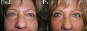Operace horních očních víček