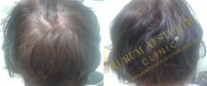 Obnova růstu vlasů po aplikaci PRP plazmy